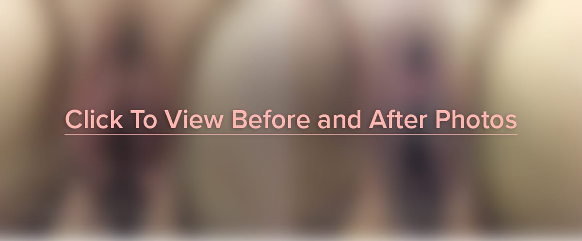 Click to View Before and After Photos
