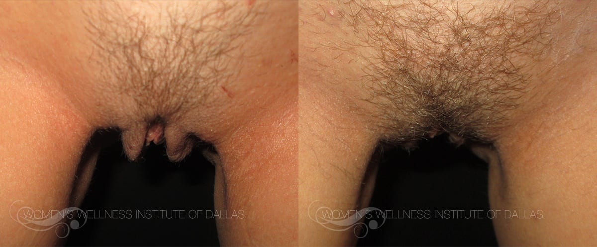 Labiaplasty Of The Majora Before And After Photo - Patient 1