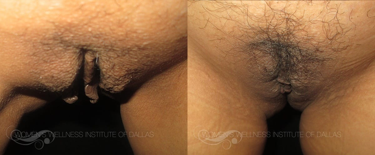 Labiaplasty Of The Majora Before And After Photo - Patient 3