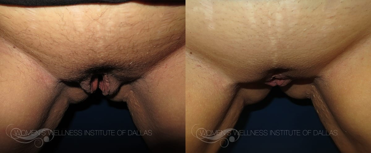 Labiaplasty Of The Majora Before And After Photo - Patient 9