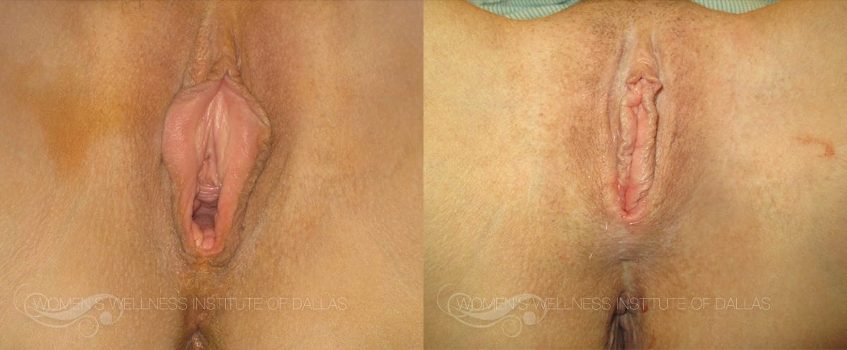 Labiaplasty of the Minora Before and After Photo - Patient 1