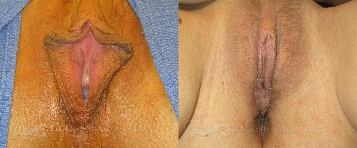 Labiaplasty of the Minora Before and After Photo - Patient 10