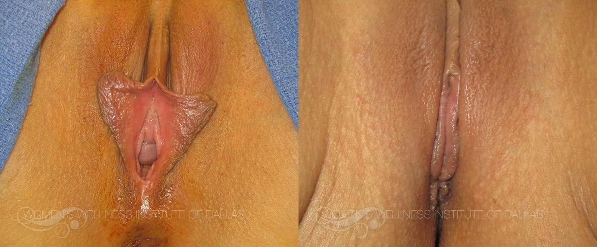 Labiaplasty of the Minora Before and After Photo - Patient 11