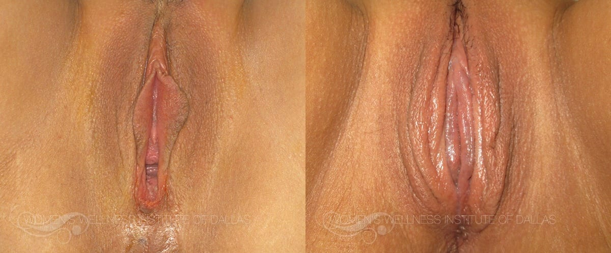 Labiaplasty of the Minora Before and After Photo - Patient 13
