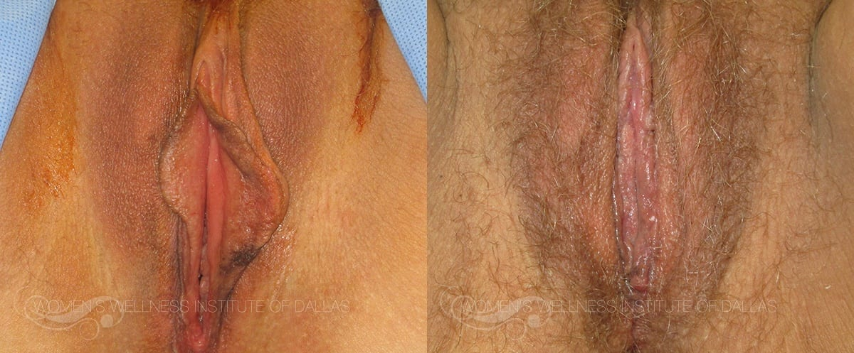 Labiaplasty of the Minora Before and After Photo - Patient 14