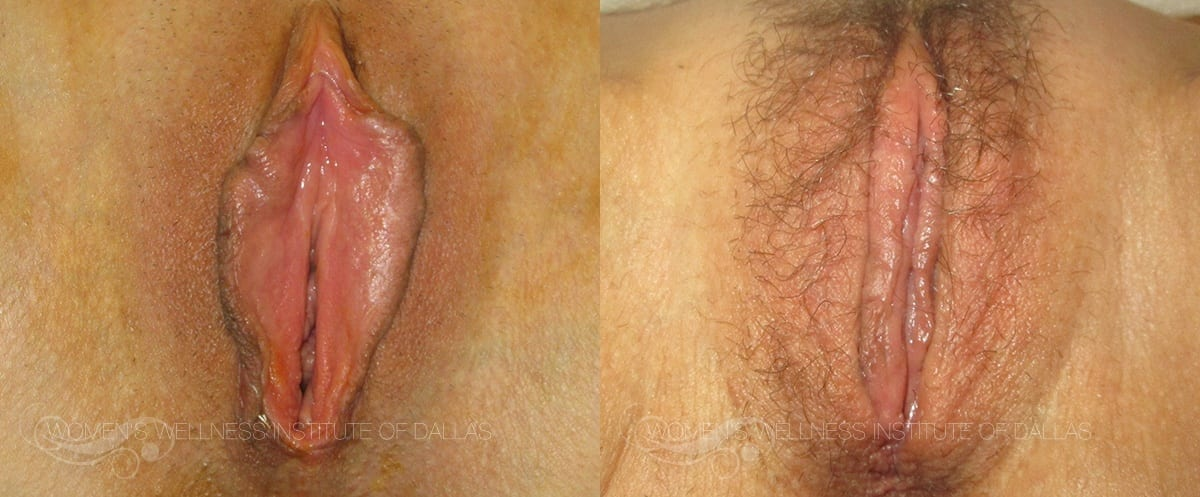 Labiaplasty of the Minora Before and After Photo - Patient 15