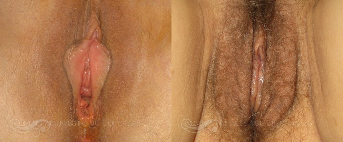 Labiaplasty of the Minora Before and After Photo - Patient 16