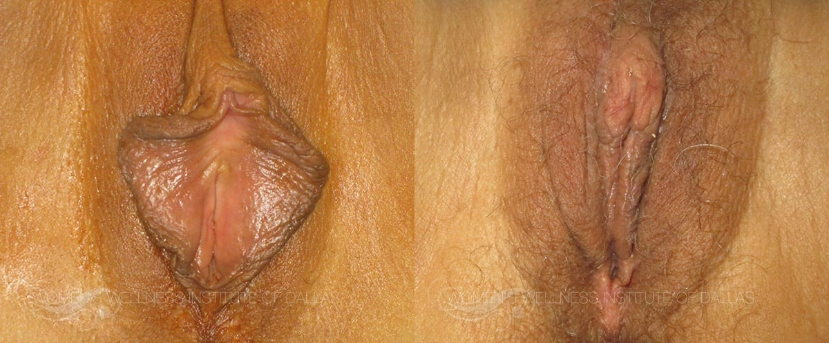 Labiaplasty of the Minora Before and After Photo - Patient 17