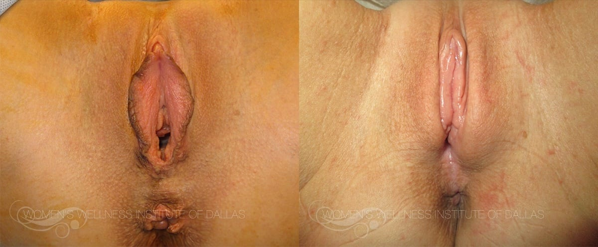 Labiaplasty of the Minora Before and After Photo - Patient 19