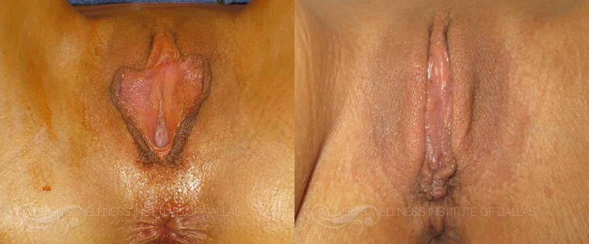 Labiaplasty of the Minora Before and After Photo - Patient 2