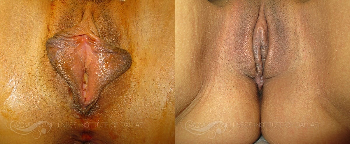 Labiaplasty of the Minora Before and After Photo - Patient 20