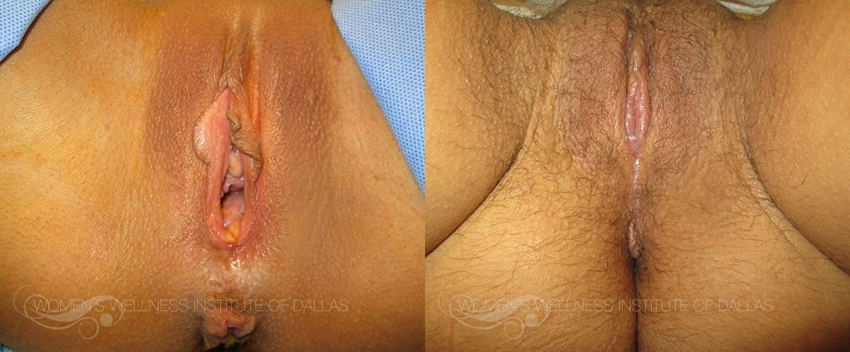 Labiaplasty of the Minora Before and After Photo - Patient 21