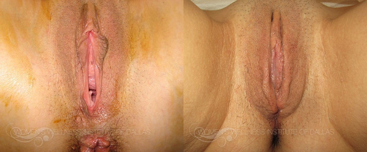 Labiaplasty of the Minora Before and After Photo - Patient 25