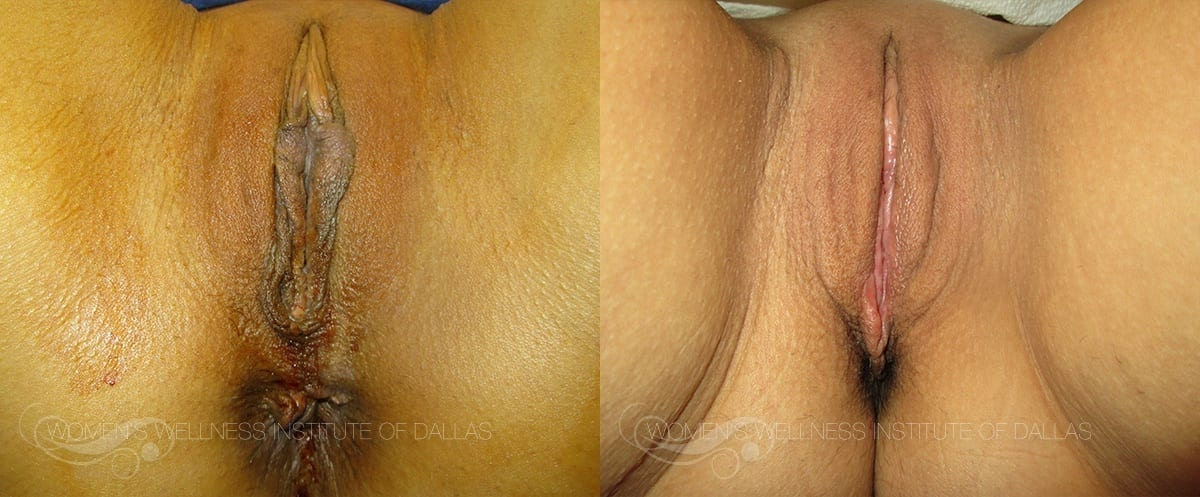 Labiaplasty of the Minora Before and After Photo - Patient 28