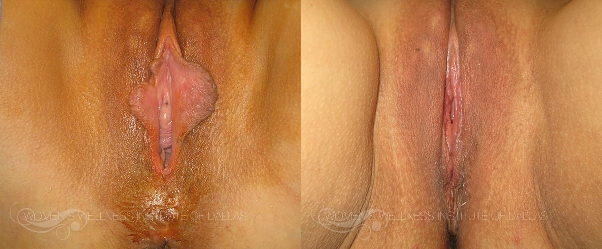Labiaplasty of the Minora Before and After Photo - Patient 3