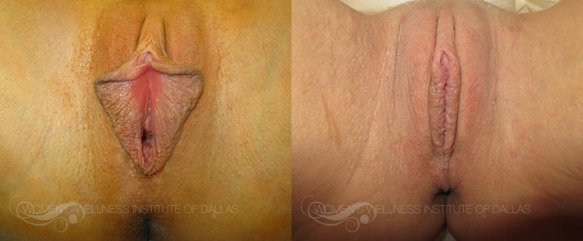 Labiaplasty of the Minora Before and After Photo - Patient 30