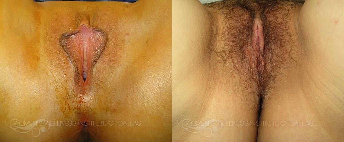 Labiaplasty of the Minora Before and After Photo - Patient 31