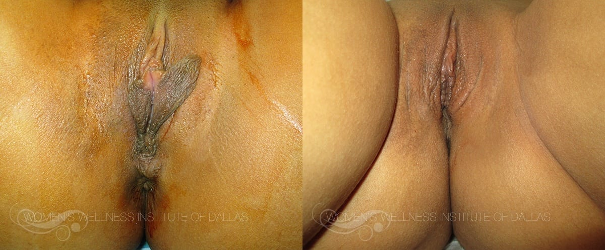 Labiaplasty of the Minora Before and After Photo - Patient 32