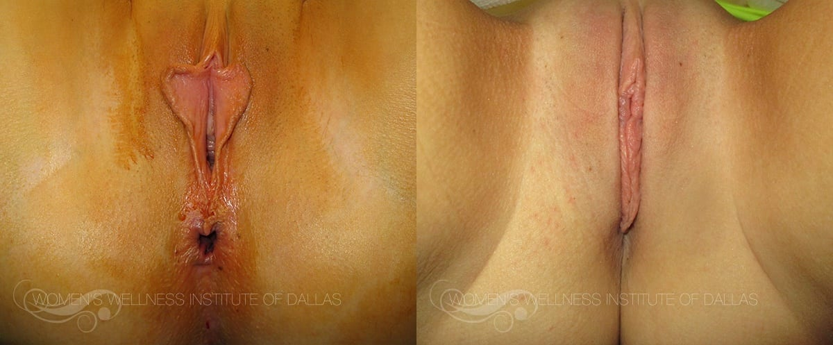 Labiaplasty of the Minora Before and After Photo - Patient 33