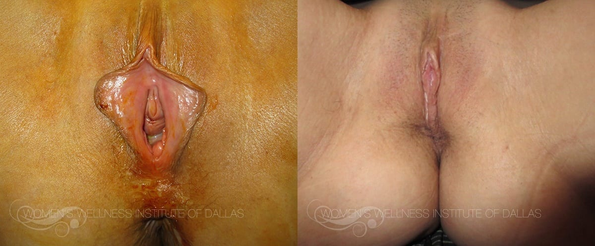 Labiaplasty of the Minora Before and After Photo - Patient 34