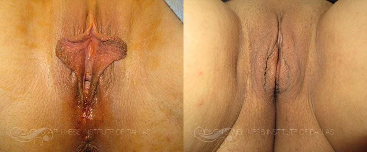 Labiaplasty of the Minora Before and After Photo - Patient 36