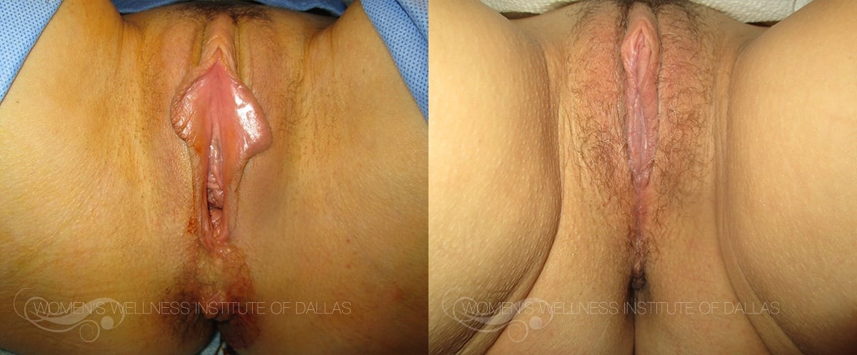 Labiaplasty of the Minora Before and After Photo - Patient 37