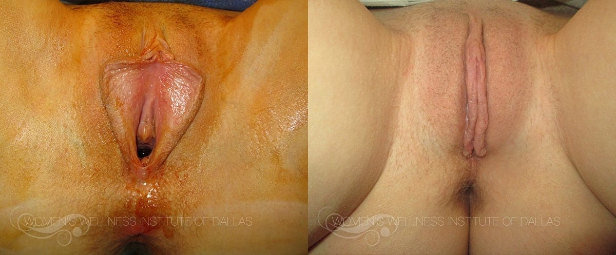 Labiaplasty of the Minora Before and After Photo - Patient 39