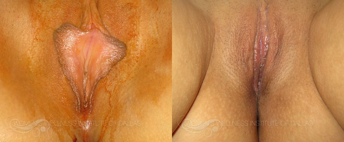 Labiaplasty of the Minora Before and After Photo - Patient 4