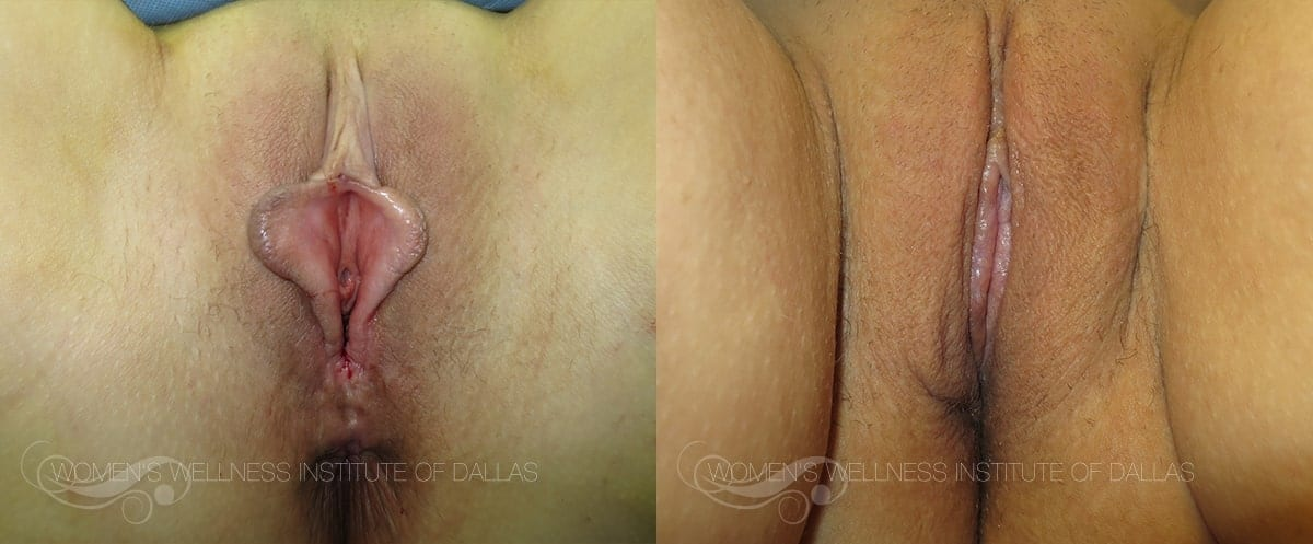 Labiaplasty of the Minora Before and After Photo - Patient 41