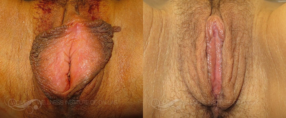 Labiaplasty of the Minora Before and After Photo - Patient 43