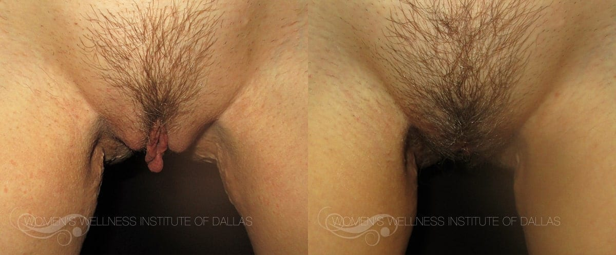 Labiaplasty of the Minora Before and After Photo - Patient 44