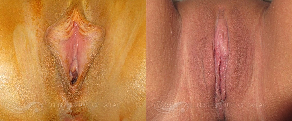 Labiaplasty of the Minora Before and After Photo - Patient 45
