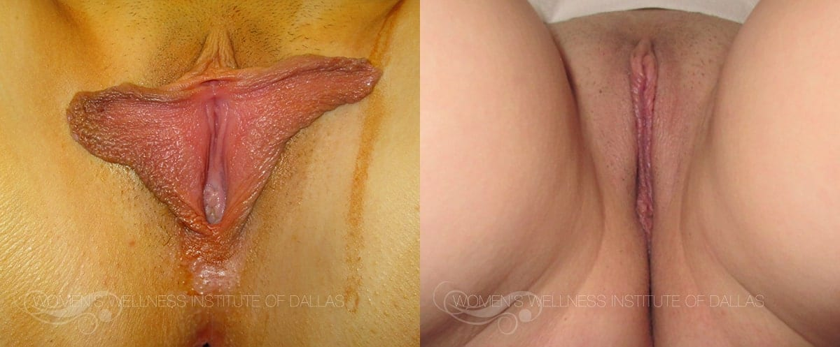 Labiaplasty of the Minora Before and After Photo - Patient 46