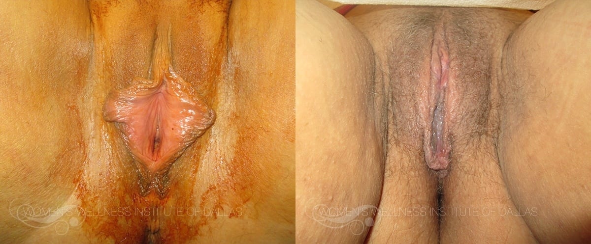 Labiaplasty of the Minora Before and After Photo - Patient 5