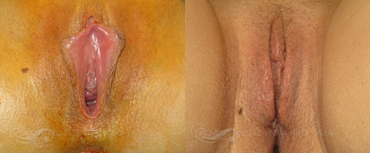 Labiaplasty of the Minora Before and After Photo - Patient 7