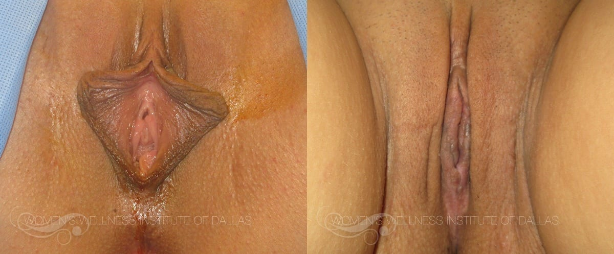 Labiaplasty of the Minora Before and After Photo - Patient 8