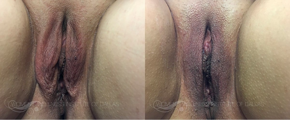 ThermiVA Before and After Photo-Patient 1