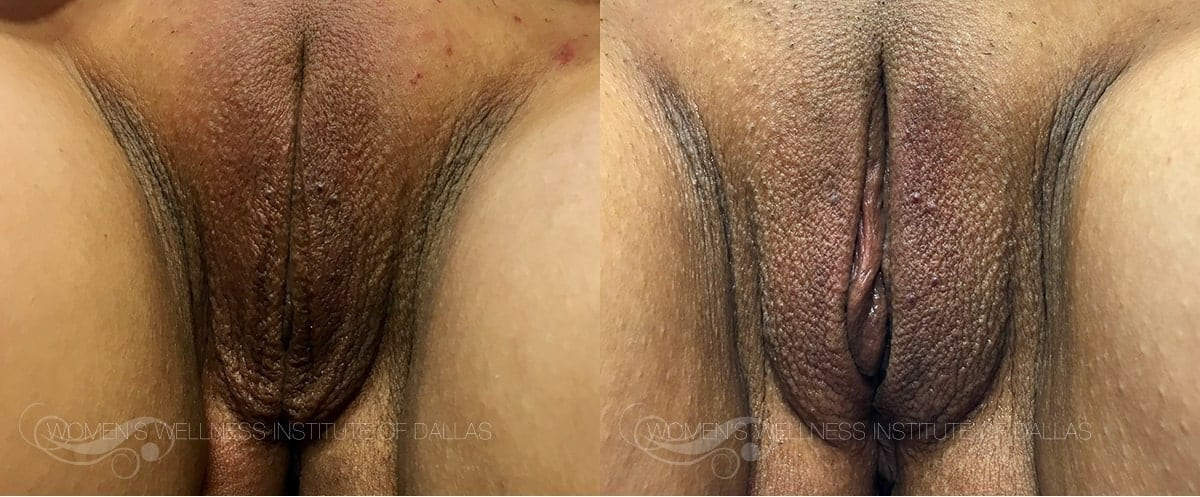 ThermiVa Before and After Photo Patient 4
