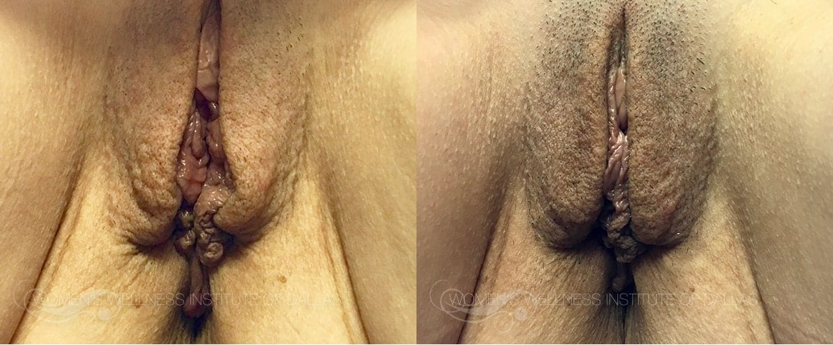 ThermiVa Before and After Photo Patient 7