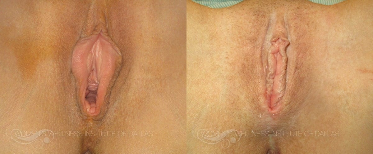 Vaginoplasty Before and After Photo - Patient 1