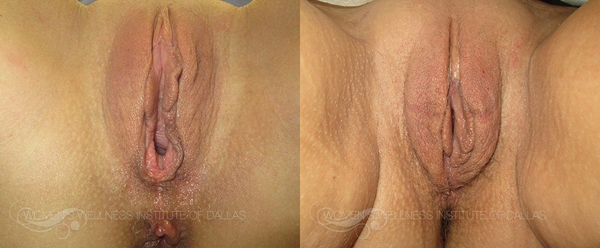 Vaginoplasty Before and After Photo - Patient 10