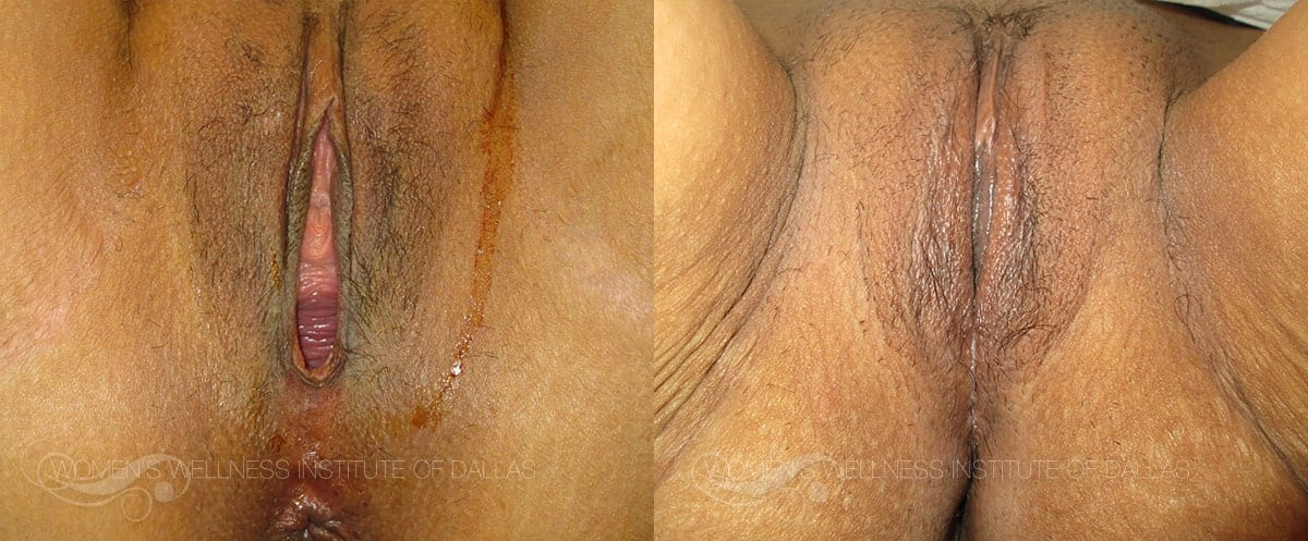 Vaginoplasty Before and After Photo - Patient 11