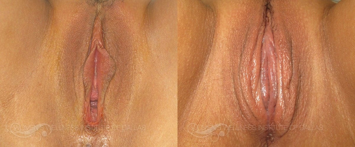 Vaginoplasty Before and After Photo - Patient 12