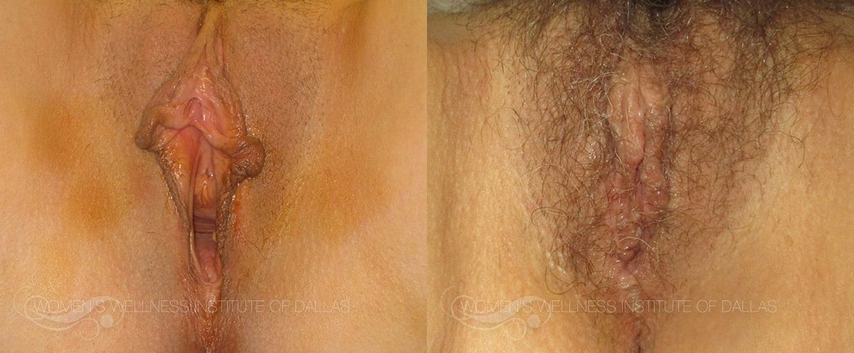 Vaginoplasty Before and After Photo - Patient 13
