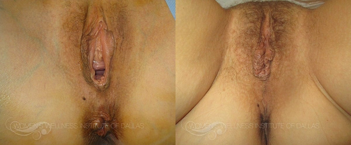 Vaginoplasty Before and After Photo - Patient 19
