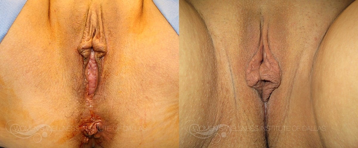 Vaginoplasty Before and After Photo - Patient 23