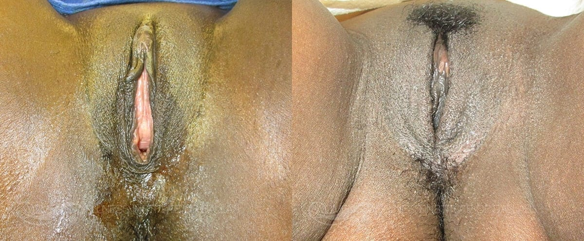Vaginoplasty Before and After Photo - Patient 25