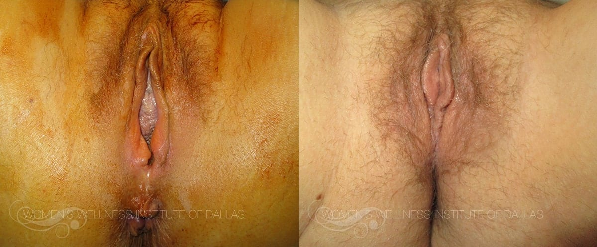 Vaginoplasty Before and After Photo - Patient 26