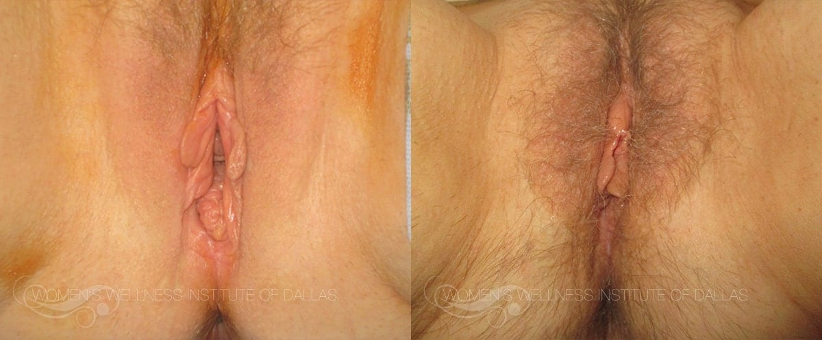 Vaginoplasty Before and After Photo - Patient 3