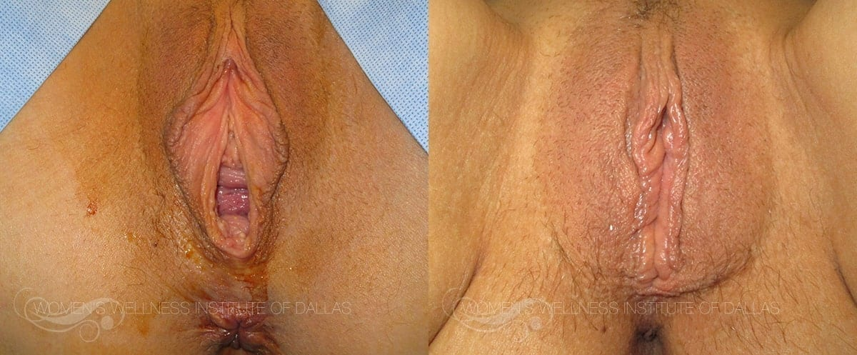 Vaginoplasty Before and After Photo - Patient 30